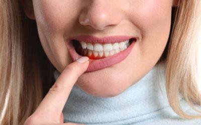 Ce trebuie sa stii despre sangerarea gingiilor – cauze si tratament.