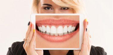 Albirea profesionala a dintilor