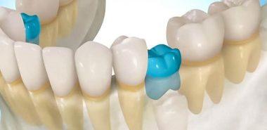 Anchiloza dentara