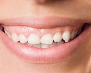 Atritie dentara