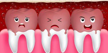 Eroziunea dentara