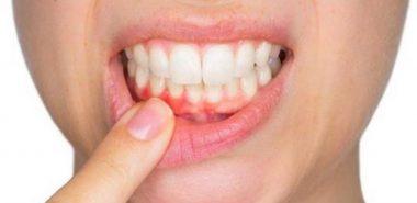 Parodontita 2
